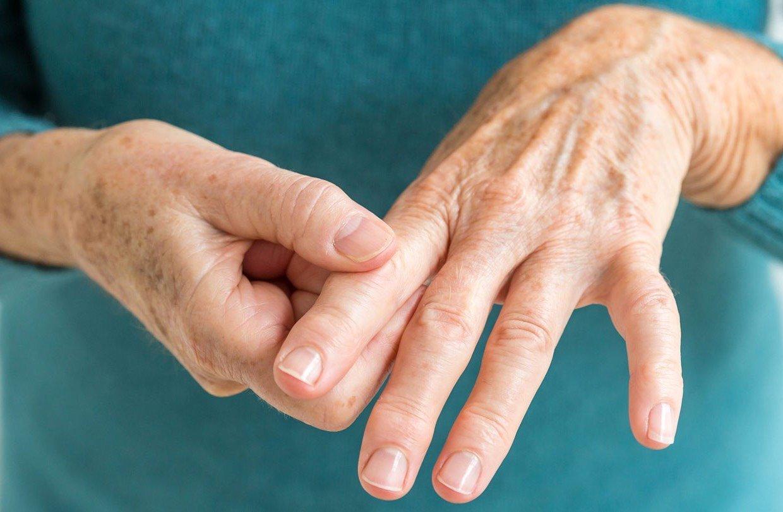 arthritis-rls